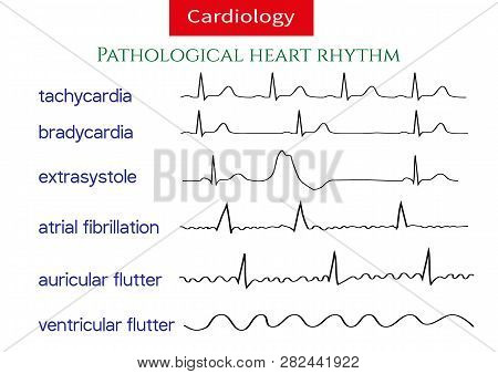 Pathological Ecg Collection. Shematic Vector Illustration Of Different Types Of Irregular Heart Rhyt