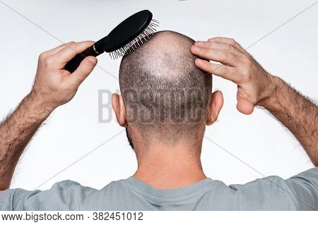 A Man Holds His Hands To His Bald Head, Combing Alopecia Foci With A Comb. Close Up. Rear View. The