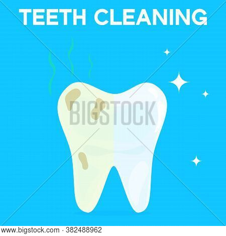 Teeth Cleaning, Whitening Or Bleaching Vector Illustration. Concept Of Dental Healthcare, Stomatolog