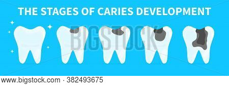 Cartoon Teeth Shows Stages Of Caries Development. Concept Of Gingivitis, Pulpitis And Periodontitis.