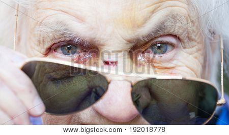 Close up picture of an injured elderly woman's eyes with sunglasses