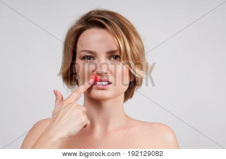 Close Up Of Female Lips Affected By Herpes Virus