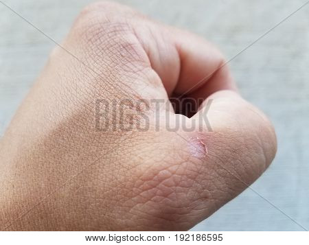 man's closed fist with small blister near thumb