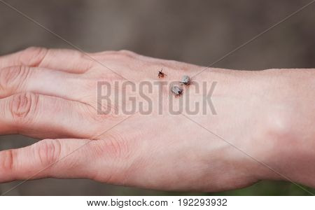 Three ticks sit on a man's hand in nature.