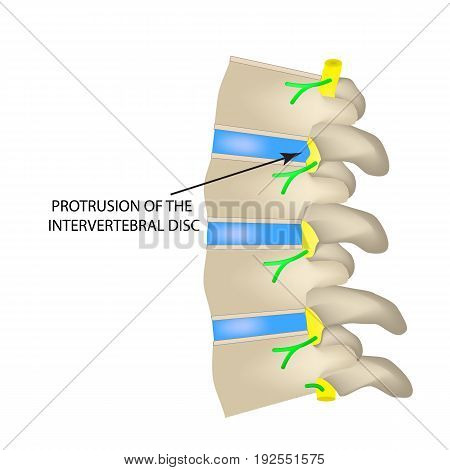 Protrusion of the intervertebral disc. Vector illustration on isolated background.