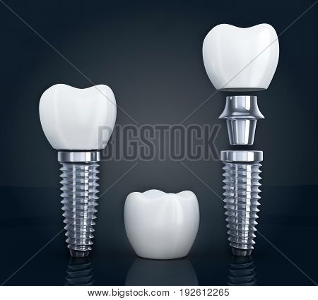 Tooth human implant disassembled on black background. 3d illustration
