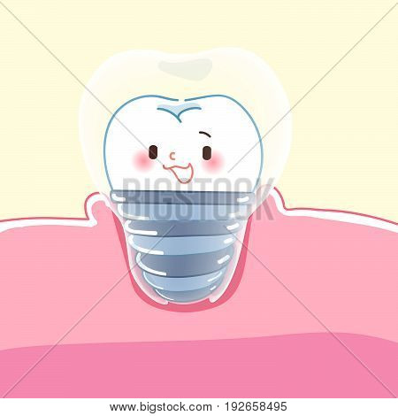 cute cartoon dental implants with health concept