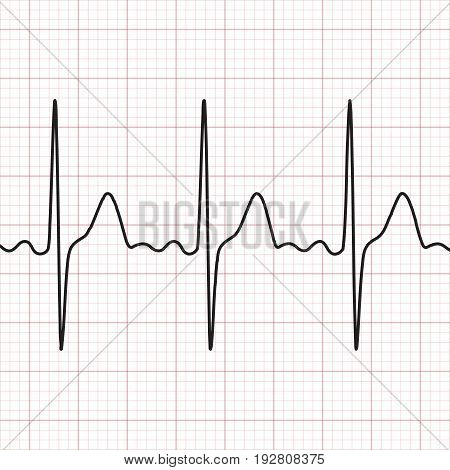 Cardiogram . Electrocardiogram. Graphic representation of heart work . Health and medicine. Vector illustration