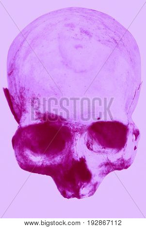 Real Human Skull On An Isolated White Background