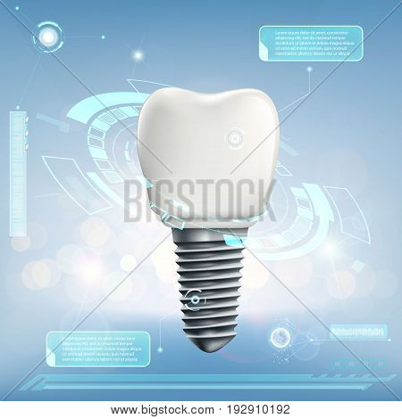 Human dental implant. Futuristic infographics of the tooth. Stock vector illustration.