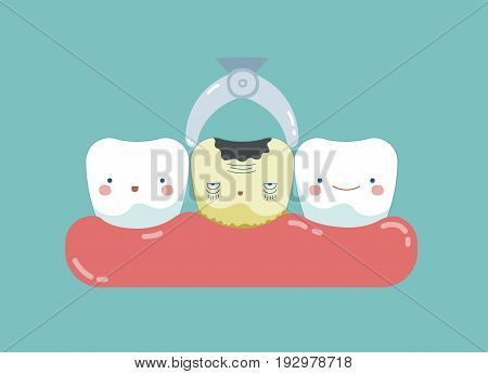 To take decayed tooth out ,teeth and tooth concept of dental