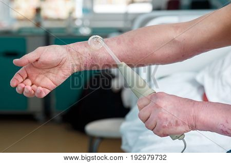 patient with a skin disease keeps the Darsonval electric shock device for treating dermatitis, apathy, seborrhea, eczema.