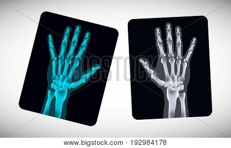Radiography. Picture of human hands on the film. Vector illustration