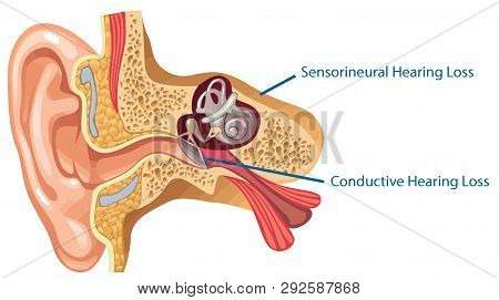 Ear Anatomy Inner  Medical Canal Sensory Sound Nerve Illustration