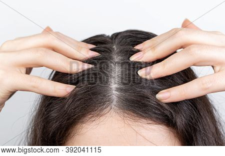 Dandruff And Hair Problems. The Woman Scratches Her Scalp With Her Hands, Showing Dark Hair With Dan