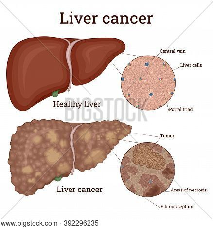 Comparative Image Of Healthy Liver And Liver With Cancer