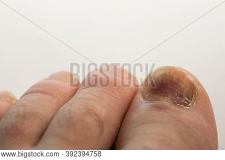A Bruised Finger After A Blow, A Bruise On The Finger