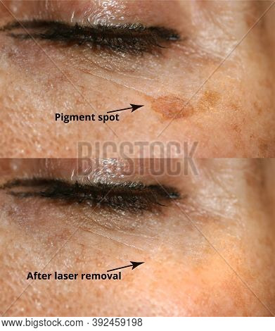 Brown Spot On The Skin Of The Face. Pigmentation On The Skin. After Laser Removal