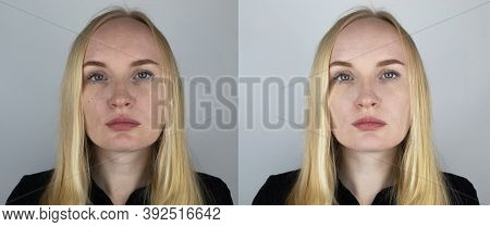 Photo Before And After The Girl. On The Left Is A Picture Of A Face With Pimples And Enlarged Pores,