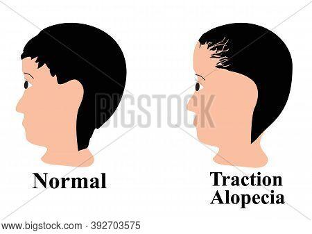 Alopecia Hair. Baldness Of Hair On The Head. Traction Alopecia. Infographics. Illustration On Isolat