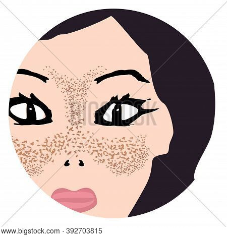 Freckles On The Face. Pigmentation On The Skin. A Pigmented Spot On The Skin Of The Face. Before And