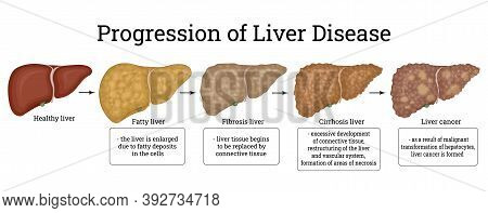 Stages Of Liver Damage Such As Fatty Liver, Fibrosis, Cirrhosis, And Liver Cancer