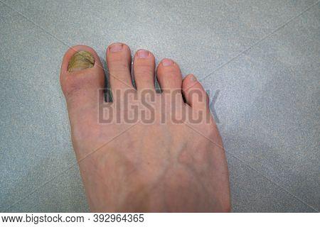 Fungus On A Man's Big Toe. Close-up Of A Nail. Fungus Of The Nail.