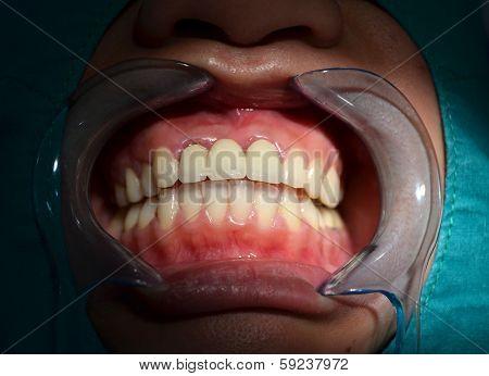 All Ceramic Bridge Of Anterior Upper Teeth