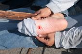 A construction worker shows a puncture wound in his foot after stepping on a nail on a construction site. Stepping on a nail hurts a lot and can cause nerve damage . time for a tetanus shot poster