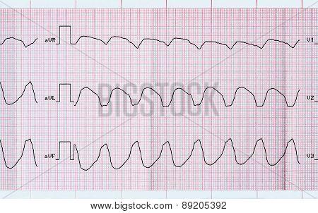 Ecg Tape With Paroxysmal Ventricular Tachycardia