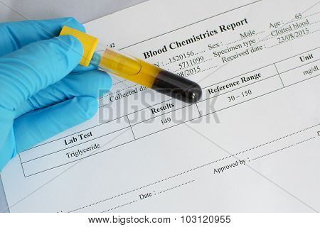 Triglyceride result: Normal