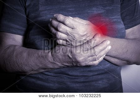 Hand Deformed From Rheumatoid Arthritis. Studio shot. Pain condition. In red poster