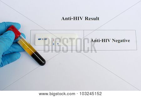 HIV testing negative