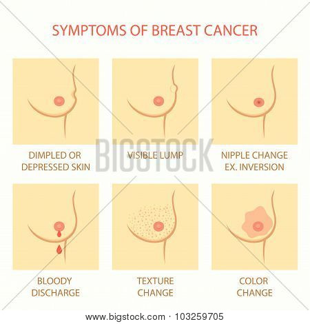 symptoms of breast cancer,