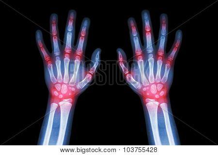 Rheumatoid Arthritis , Gout Arthritis