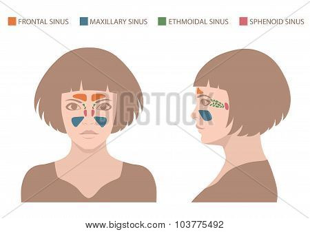 sinus anatomy,