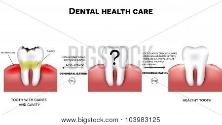 Dental Health Care, Healthy Tooth And Tooth With Caries