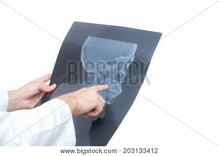 Healthcare With Roentgen - People And Medicine Concept - Male Doctor In White Coat Looking At X-ray