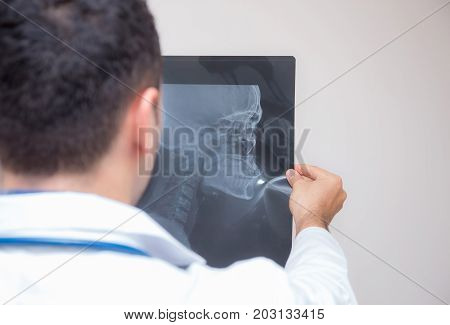 healthcare with roentgen - people and medicine concept - male doctor in white coat looking at x-ray isolated on white background