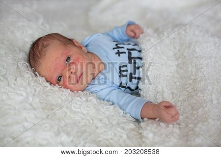Little Newborn Baby Sleeping, Baby With Skin Rash