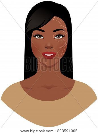 Portrait of a beautiful African American woman with a plastic surgeon pattern on her face stock vector illustration