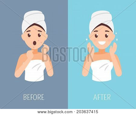 Woman skin care. Before and after face treatment. Facial skin problems flat illustration