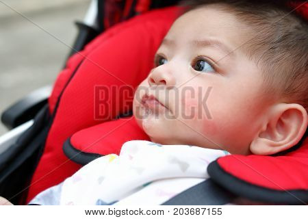 Cute Baby Boy Happy Playful Bubbles Saliva Drool On Child Mouth With Allergic Rash On Kid Chubby Che