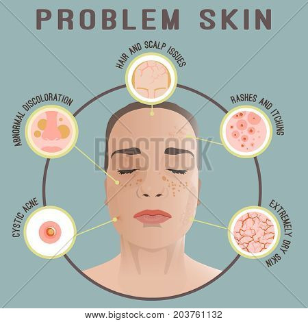 poster of Important reasons to see a dermatologist. Woman face with skin problems. Dermatology and cosmetology concept. Vector illustration isolated on a blue background.