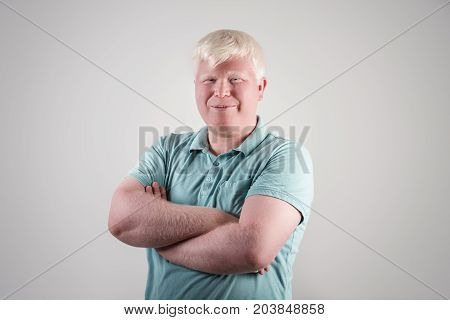 Albino young man portrait. Blond guy isolated at white background. Albinism, pale skin.