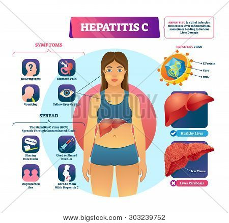 Hepatitis C Vector Illustration. Labeled Viral Infection Explanation Scheme. Liver Inflammation With