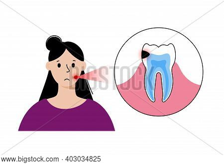 Woman Dental Care Concept. Girl In Stomatology Clinic, Toothache Problem. Tooth Anatomy Isolated Fla