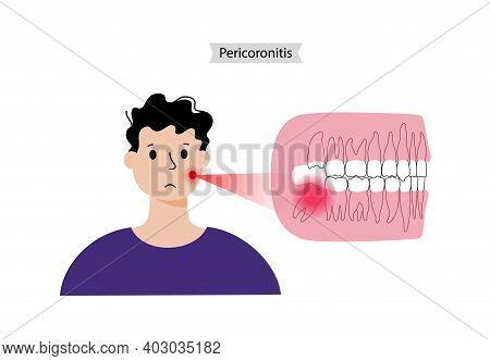 Human Jaw And Wisdom Tooth Problems. Stomatology, Dental Care Concept. Tooth Anatomy Poster Flat Vec