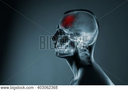 X-ray Of A Mans Head. Medical Examination Of Head Injuries. Frontal Part Of The Brain Is Highlighted