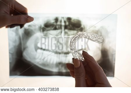 Female Hands With Transparent Mouth Guards For Correcting Bite And X-ray Of The Jaw. The Orthodontis